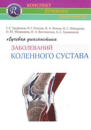 Лучевая диагностика заболеваний коленного сустава
