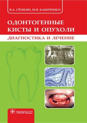 Одонтогенные кисты и опухоли