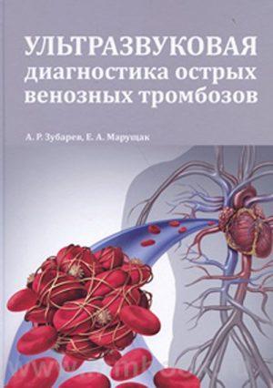Ультразвуковая диагностика острых венозных тромбозов. Руководство для врачей