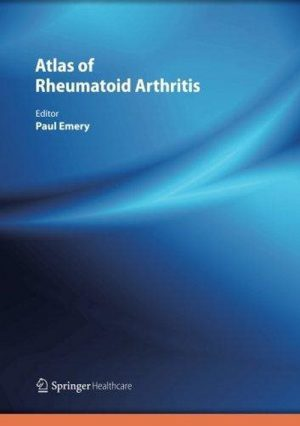 Atlas Of Rheumatoid Arthritis