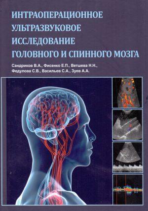 Интраоперационное ультразвуковое исследование головного и спинного мозга