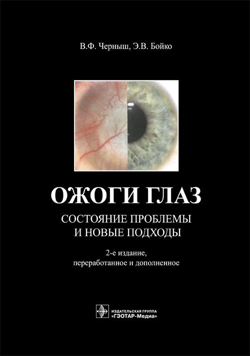 Cover_Ozhogi glaz.indd
