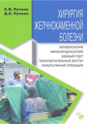 Хирургия желчнокаменной болезни: лапароскопия, минилапароскопия, единый порт, трансвагинальный доступ, симультанные операции