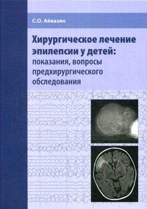 Хирургическое лечение эпилепсии у детей