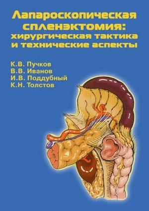 Лапароскопическая спленэктомия. Монография