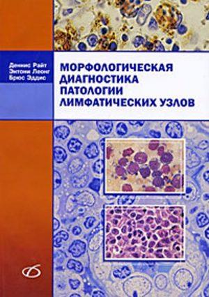 Морфологическая диагностика патологии лимфатических узлов. Руководство