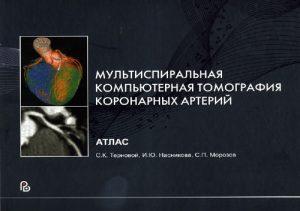 Мультиспиральная компьютерная томография коронарных артерий. Монография