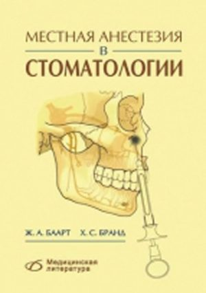 Местная анестезия в стоматологии