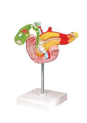 Модель патологии поджелудочной железы, двенадцатиперстной кишки и желчного пузыря. Размер натуральный