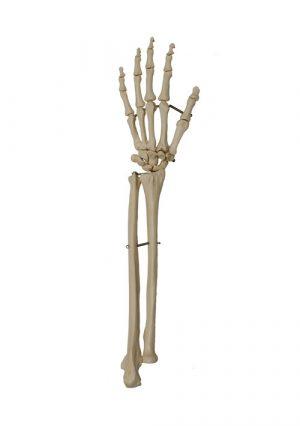 Модель скелета кисти с культями костей предплечья