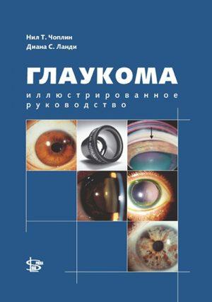 Глаукома. Руководство