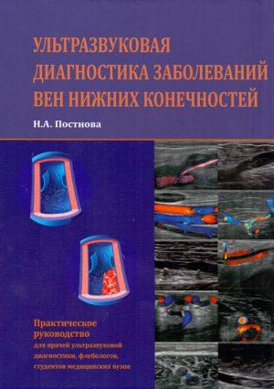 Ультразвуковая диагностика заболеваний вен нижних конечностей