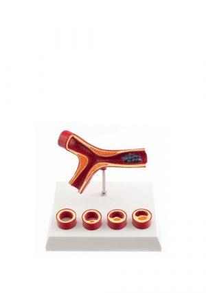 Модель атеросклероза и тромбоза на подставке. Увеличение в 10 раз
