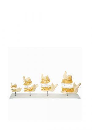 Модель развития зубов