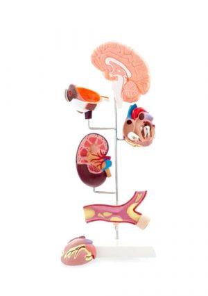 Модель кровяного давления. 6 частей