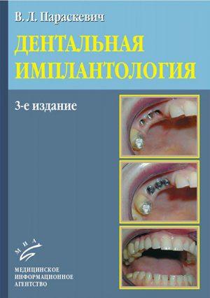 Дентальная имплантология. Руководство
