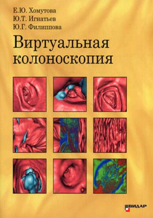 Виртуальная колоноскопия. Монография