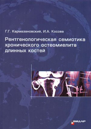 Рентгенологическая семиотика хронического остеомиелита длинных костей. Монография