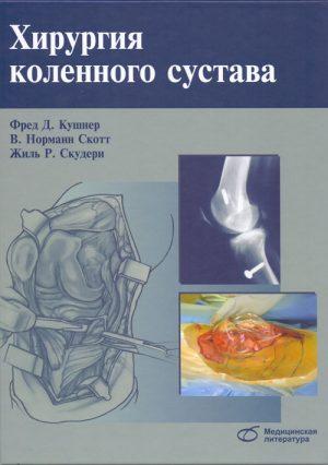 Хирургия коленного сустава. Руководство
