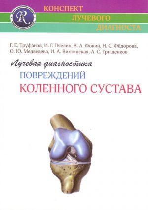 Лучевая диагностика повреждений коленного сустава