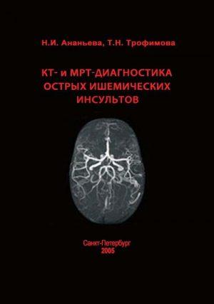 КТ- и МРТ-диагностика острых ишемических инсультов. Монография