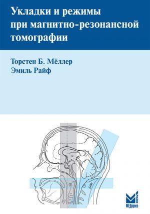 Укладки и режимы при магнитно-резонансной томографии. Руководство