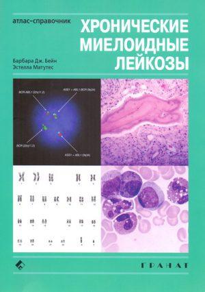 Хронические миелоидные лейкозы