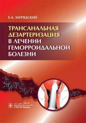 Трансанальная дезартеризация в лечении геморроидальной болезни