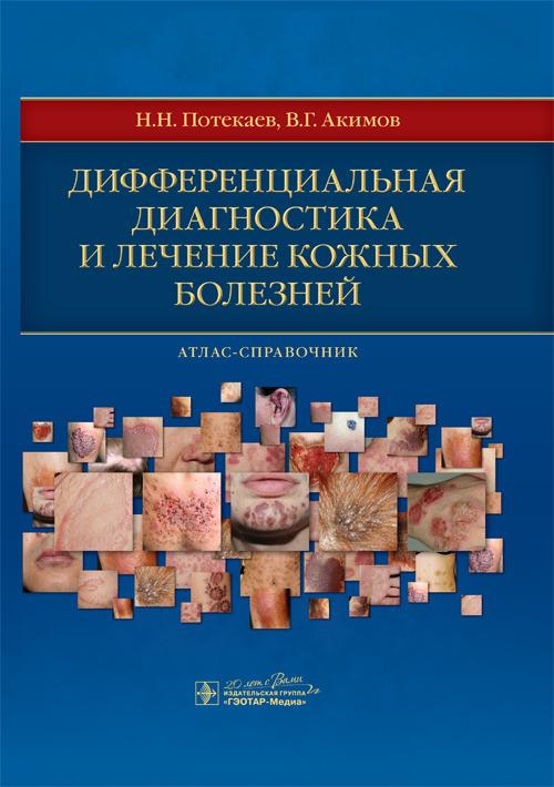 Cover_diagn_kozh_bol.indd