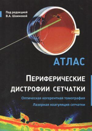 Периферические дистрофии сетчатки. Оптическая когерентная томография. Лазерная коагуляция сетчатки