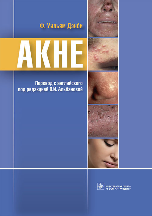 Cover Acne.indd