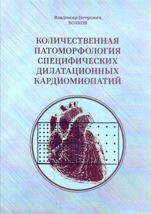 Количественная патоморфология специфических дилатационных кардиомиопатий