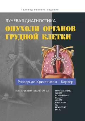 Лучевая диагностика. Опухоли органов грудной клетки