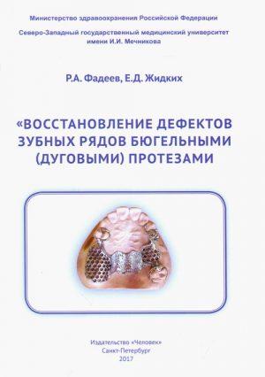 Восстановление дефектов зубных рядов бюгельными (дуговыми) протезами