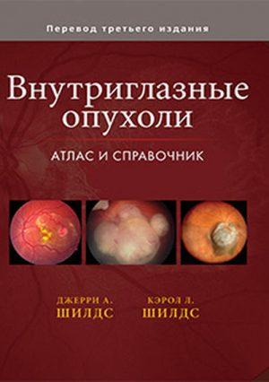 Внутриглазные опухоли. Атлас и справочник