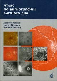 Атлас по ангиографии глазного дна