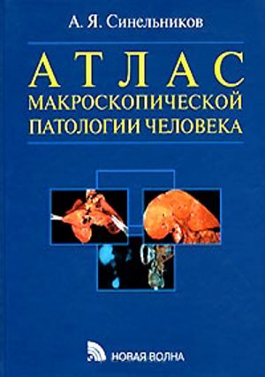 Атлас макроскопической патологии