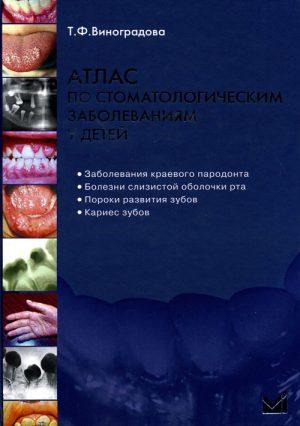 Атлас по стоматологическим заболеваниям у детей + CD
