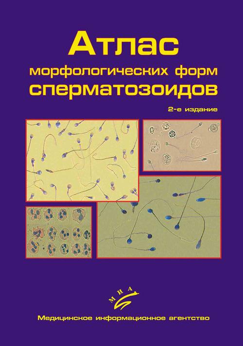 Формы сперматозодиов