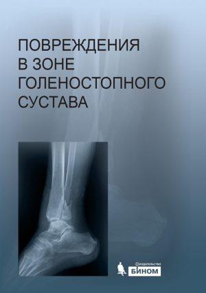 Повреждения в зоне голеностопного сустава. Атлас