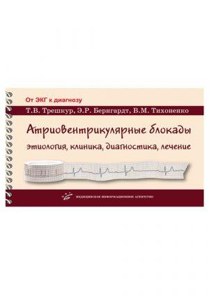 Атриовентрикулярные блокады: этиология, клиника, диагностика, лечение. Учебное пособие