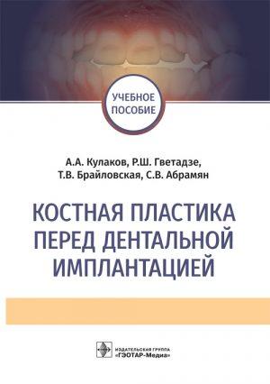 Костная пластика перед дентальной имплантацией. Учебное пособие