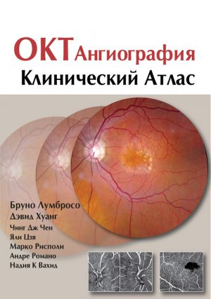 ОКТ-ангиография. Клинический атлас