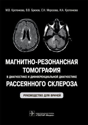 Магнитно-резонансная томография в диагностике и дифференциальной диагностике рассеянного склероза. Руководство
