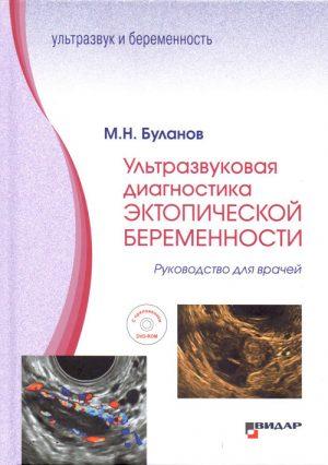 Ультразвуковая диагностика эктопической беременности. Руководство
