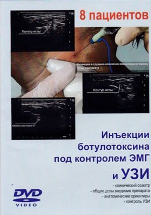 DVD. Инъекции ботулотоксина под контролем ЭМГ и УЗИ