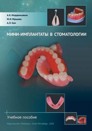Мини-имплантаты в стоматологии
