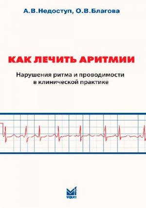 Как лечить аритмии. Нарушения ритма и проводимости в клинической практике