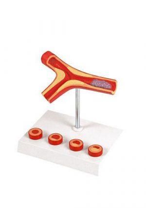 Атеросклероз и тромбоз, многокротное увеличение, материал-пластик