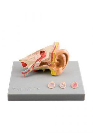 Заболевания уха. Модель из 4-х частей на подставке. Увеличение в 1,5 раза